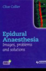 Epidural Anaesthesia: Images, Problems and Solutions