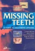 Missing Teeth. A Guide to Treatment Options