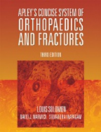 Solomon L. - Apley´s Concise System of Orthopaedics and Fractures